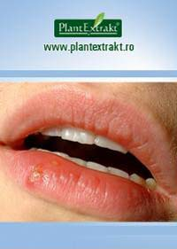 herpesul labial tratament homeopatic